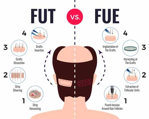 How Effective Are Different Hair Transplant Methods